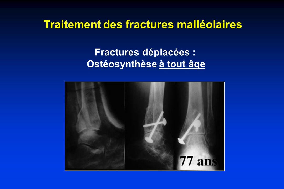 Fractures déplacées : Ostéosynthèse à tout âge