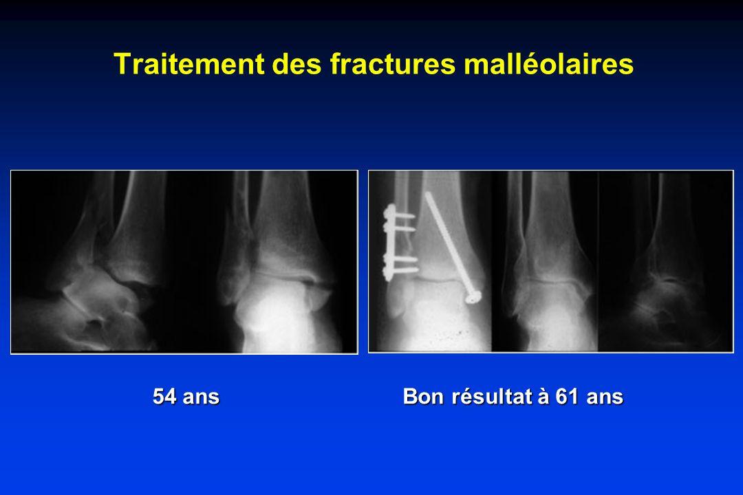 Traitement des fractures malléolaires