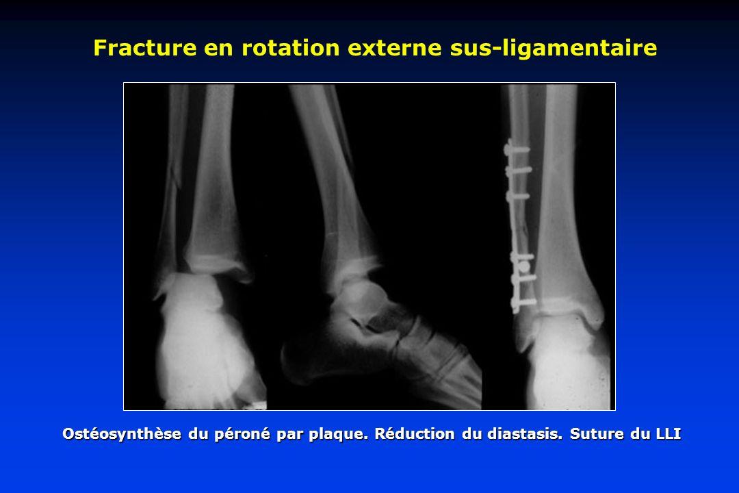 Fracture en rotation externe sus-ligamentaire