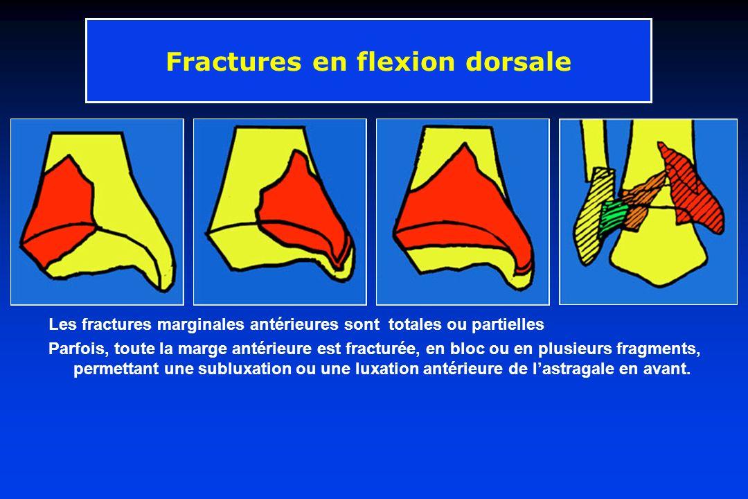 Fractures en flexion dorsale
