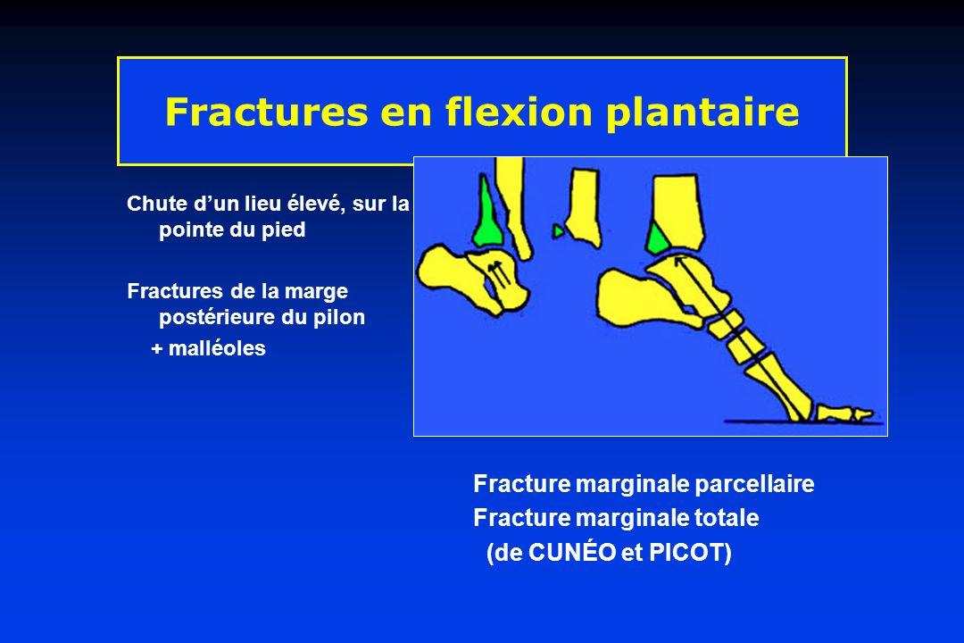 Fractures en flexion plantaire