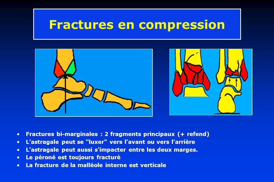Fractures en compression