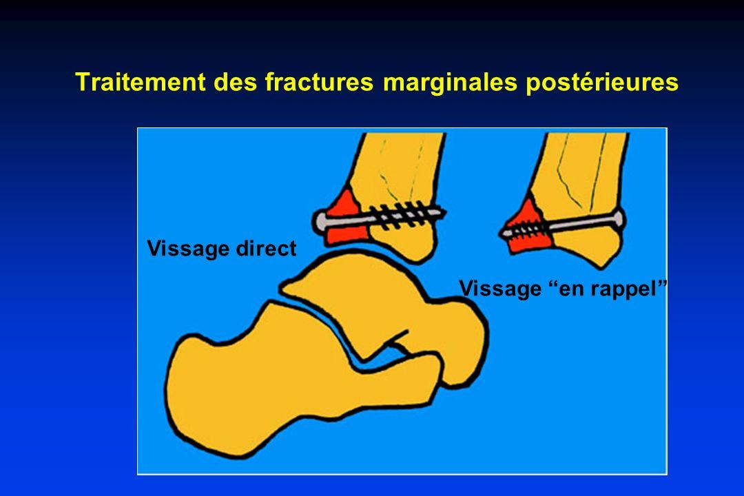 Traitement des fractures marginales postérieures