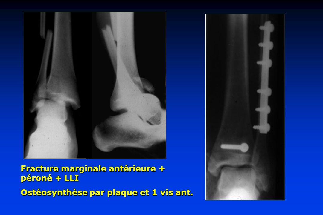 Fracture marginale antérieure + péroné + LLI