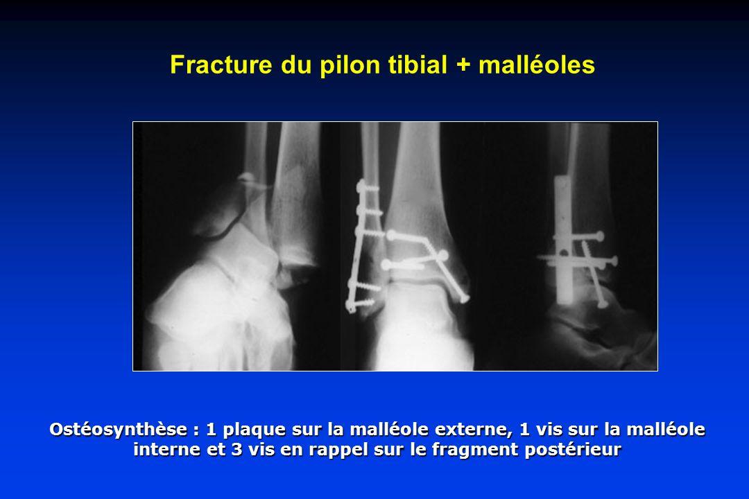 Fracture du pilon tibial + malléoles