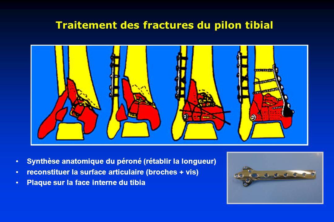 Traitement des fractures du pilon tibial