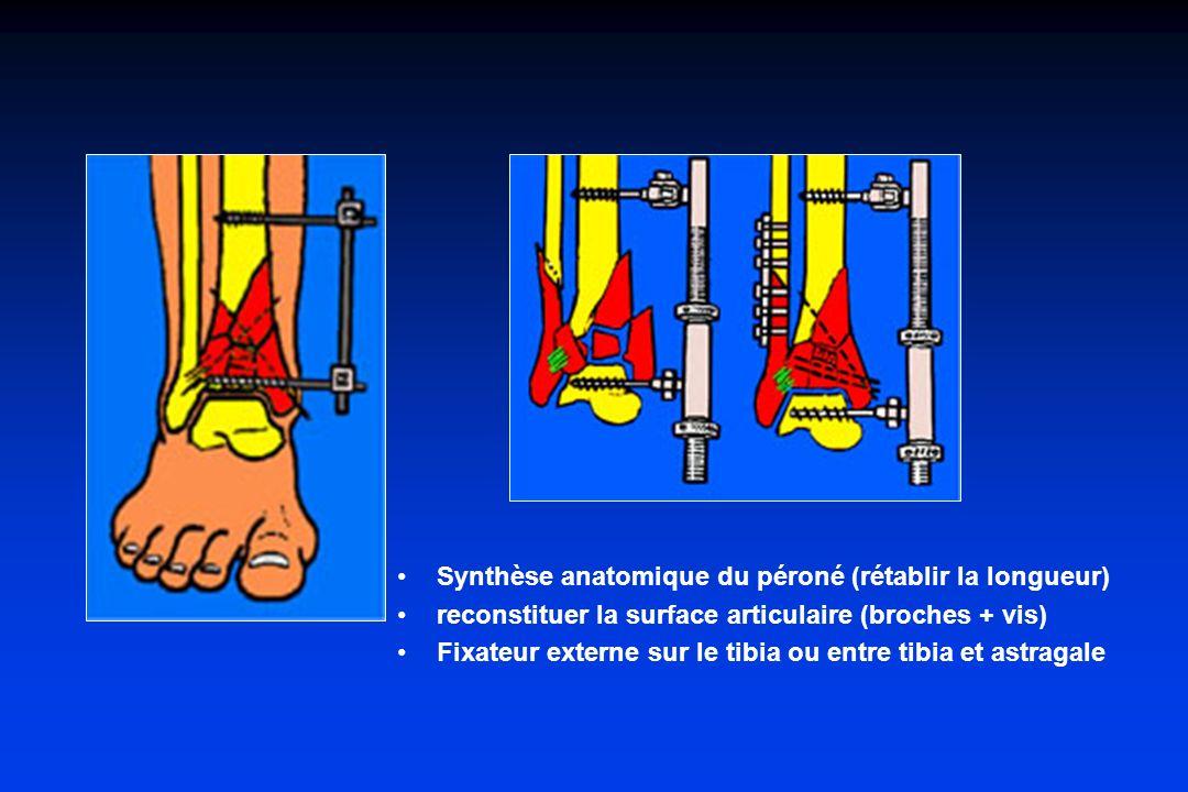 Synthèse anatomique du péroné (rétablir la longueur)