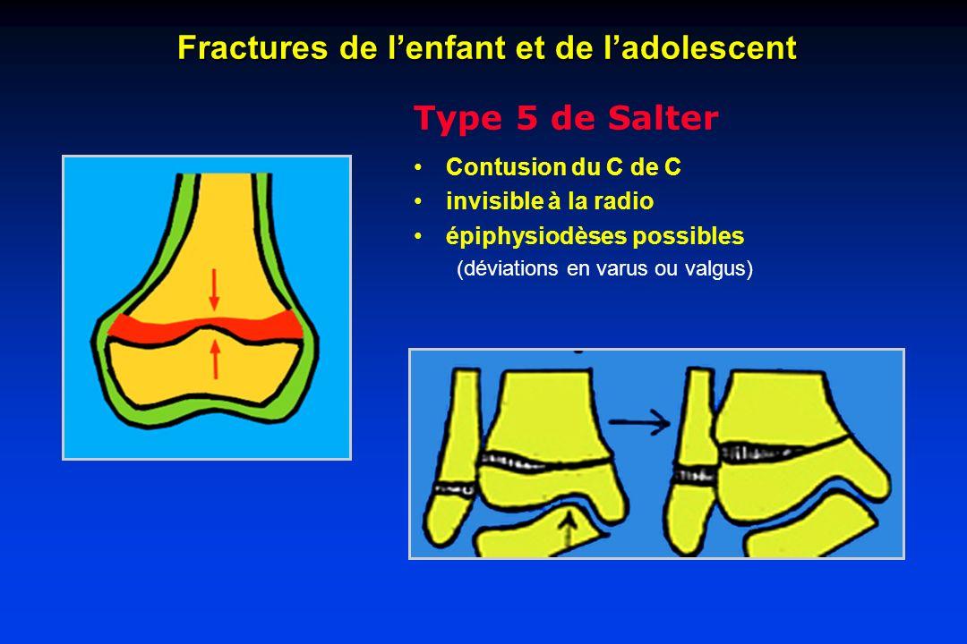 Fractures de l'enfant et de l'adolescent