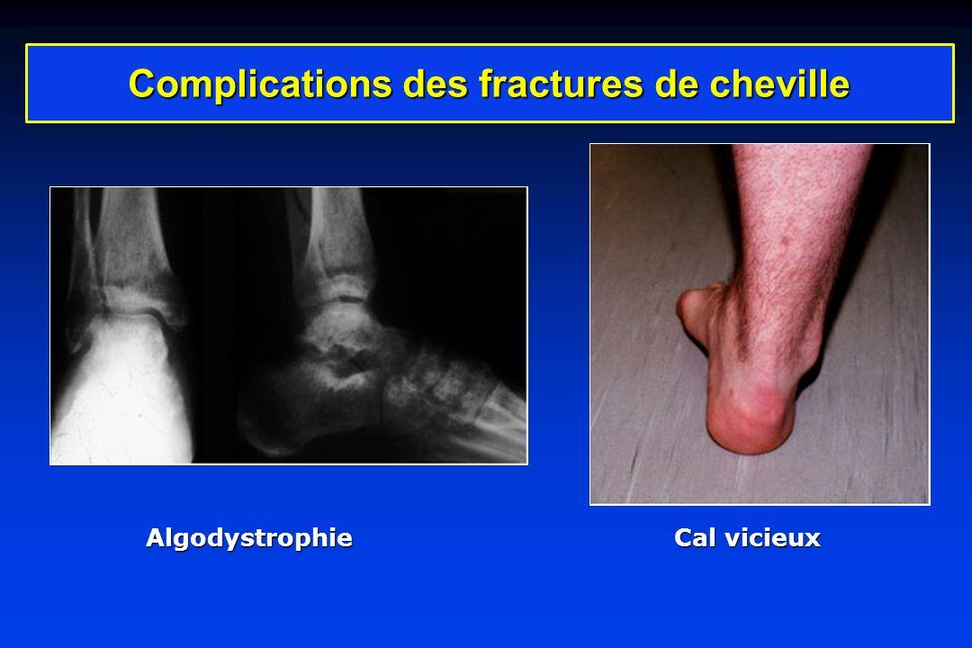 Complications des fractures de cheville