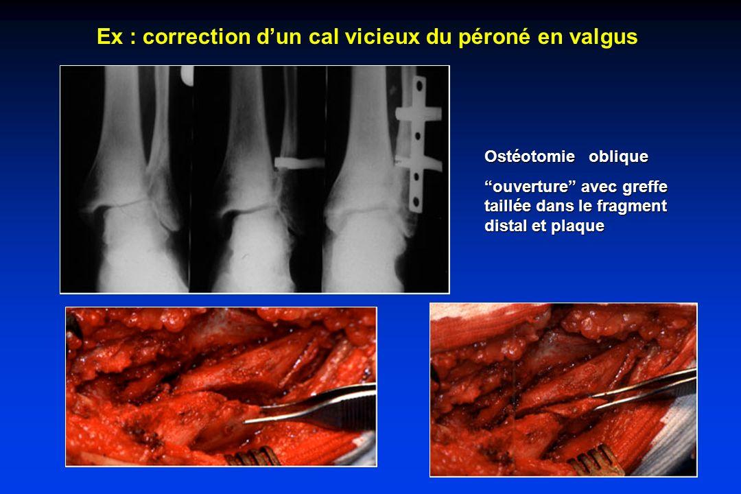 Ex : correction d'un cal vicieux du péroné en valgus