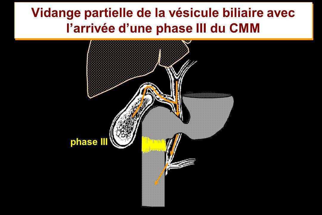 Vidange partielle de la vésicule biliaire avec l'arrivée d'une phase III du CMM