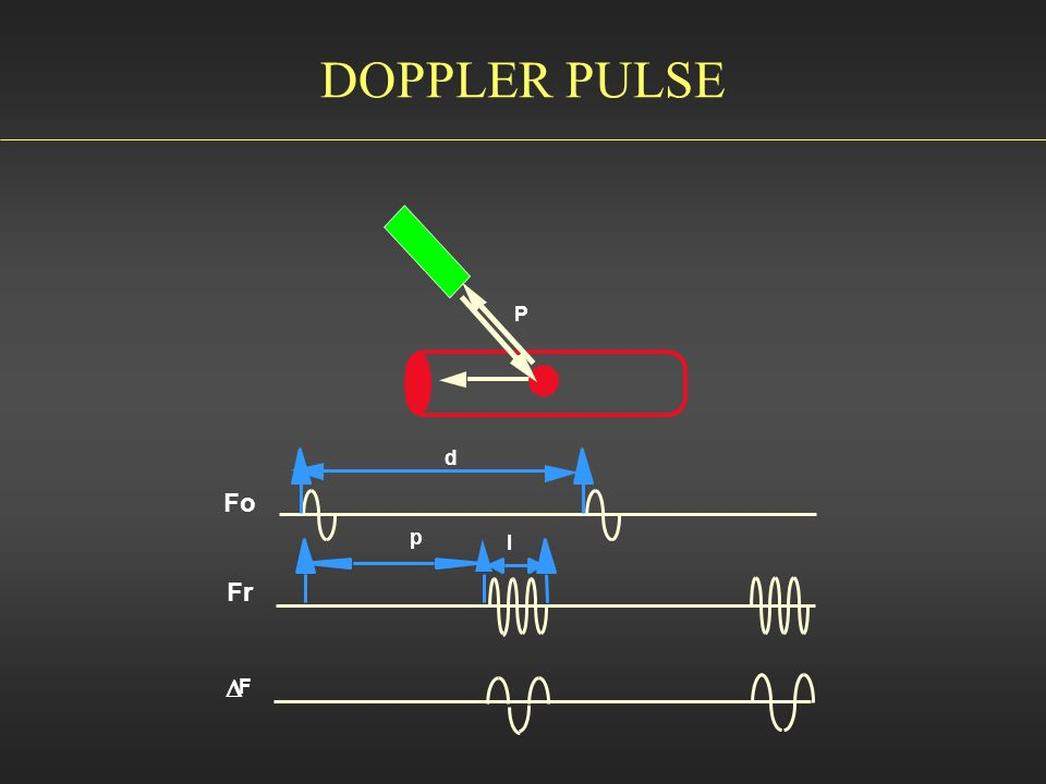 DOPPLER PULSE P d Fo p l Fr D F