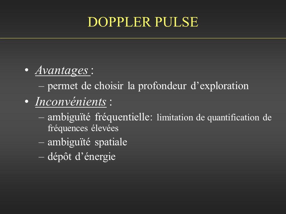 DOPPLER PULSE Avantages : Inconvénients :