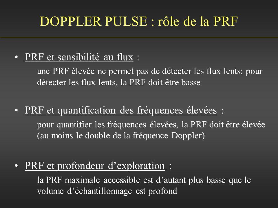 DOPPLER PULSE : rôle de la PRF