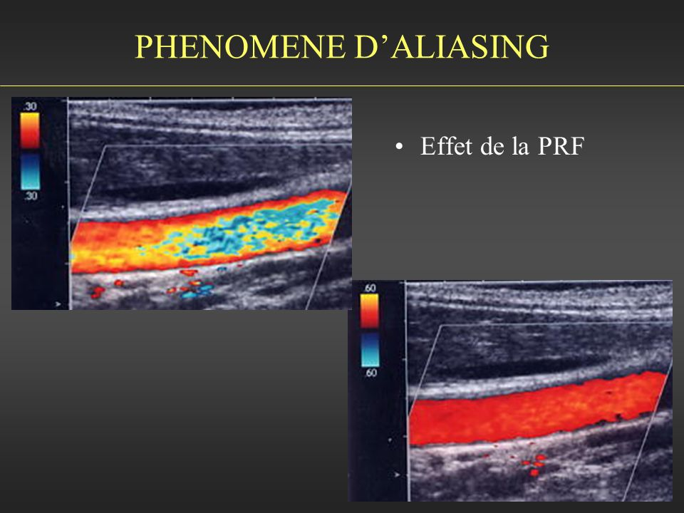 PHENOMENE D'ALIASING Effet de la PRF