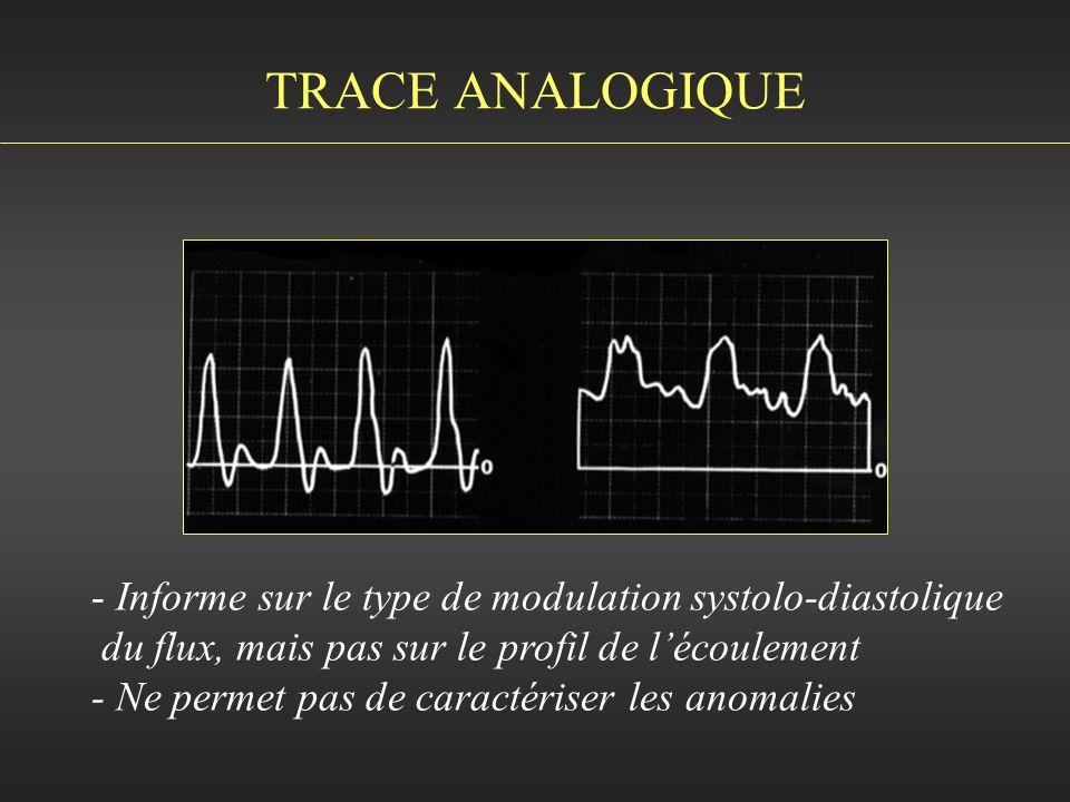 TRACE ANALOGIQUE Informe sur le type de modulation systolo-diastolique