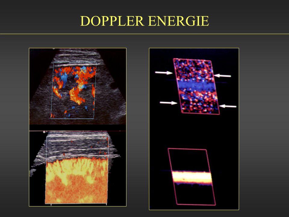 DOPPLER ENERGIE
