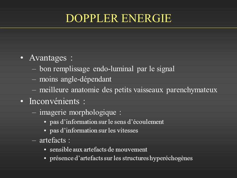 DOPPLER ENERGIE Avantages : Inconvénients :