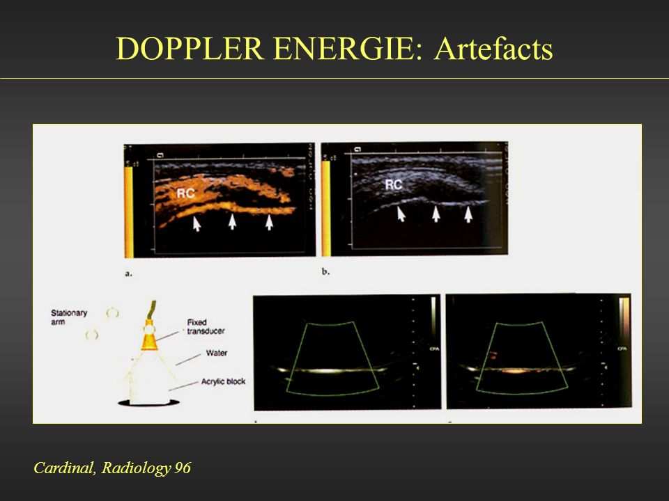 DOPPLER ENERGIE: Artefacts