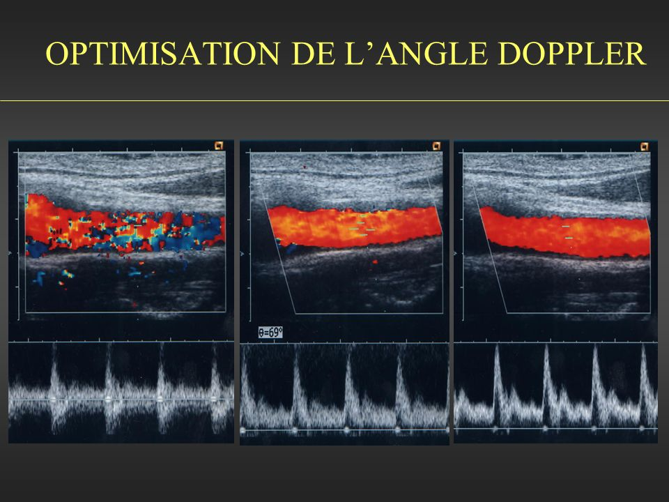 OPTIMISATION DE L'ANGLE DOPPLER