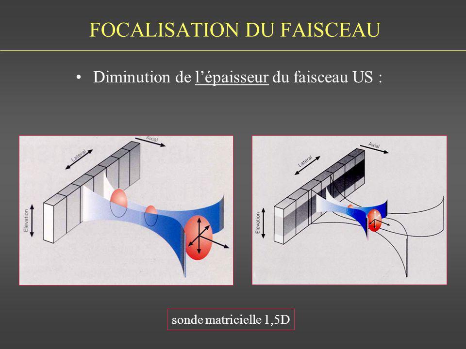 FOCALISATION DU FAISCEAU