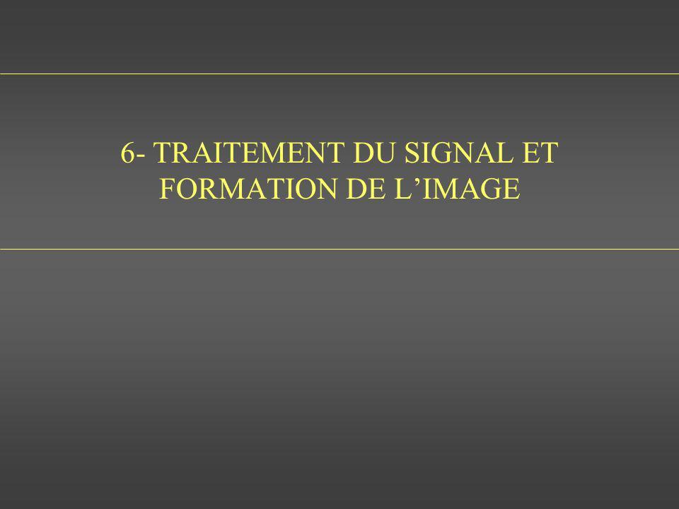 6- TRAITEMENT DU SIGNAL ET FORMATION DE L'IMAGE
