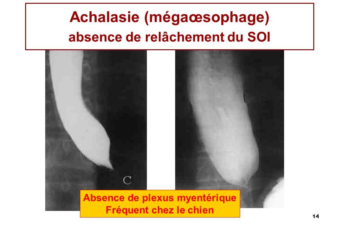 Achalasie (mégaœsophage) absence de relâchement du SOI