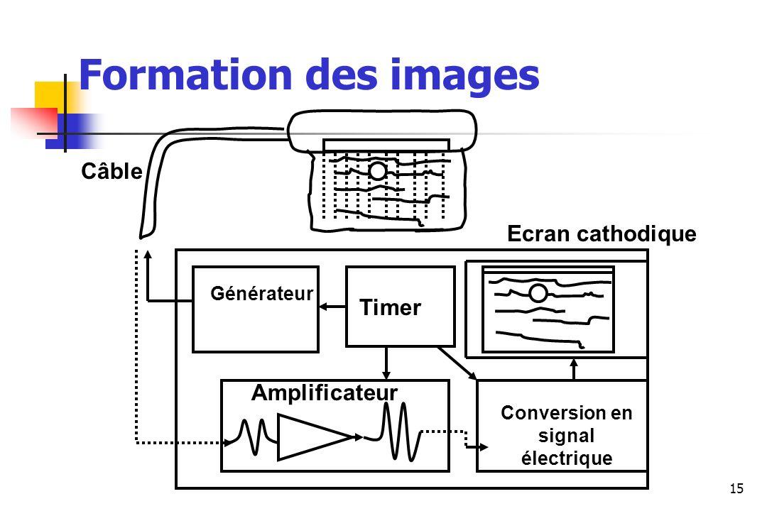 Formation des images Câble Ecran cathodique Timer Amplificateur