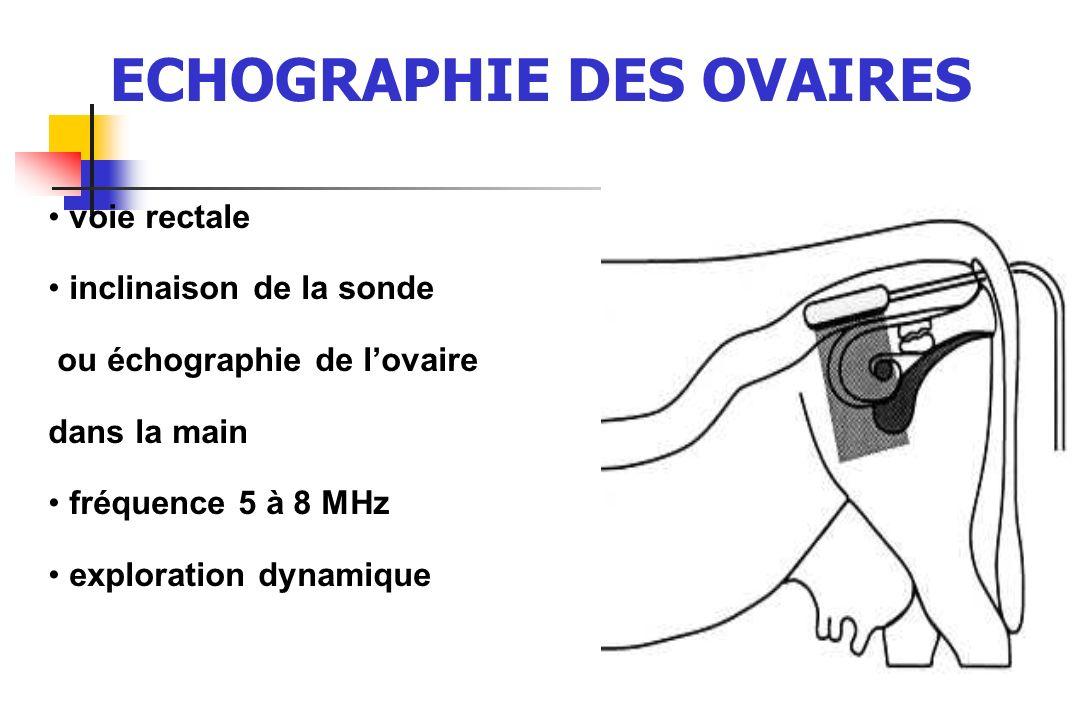 ECHOGRAPHIE DES OVAIRES