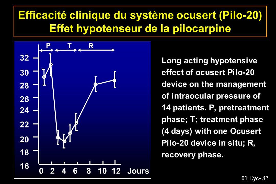 Efficacité clinique du système ocusert (Pilo-20) Effet hypotenseur de la pilocarpine