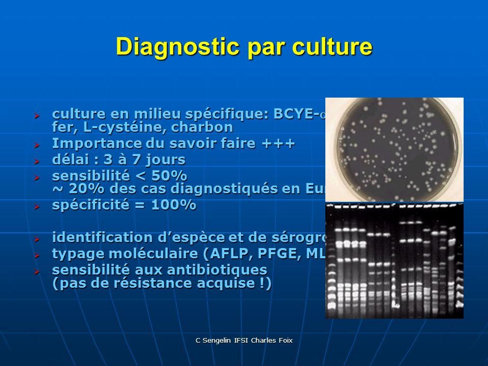 Diagnostic par culture