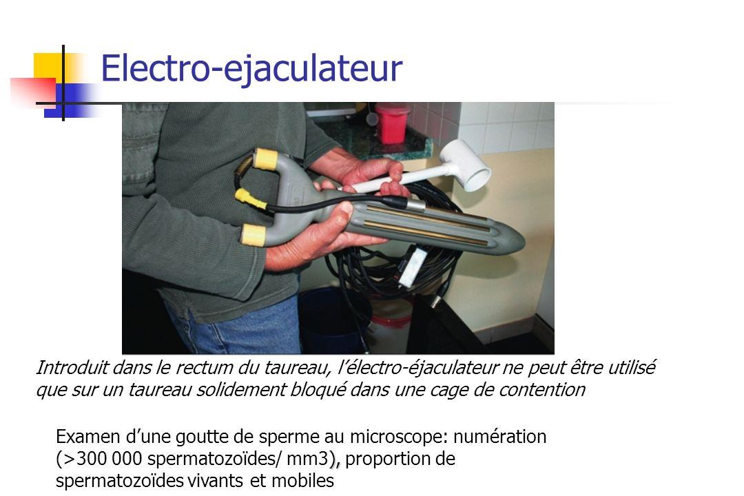 Electro-ejaculateur