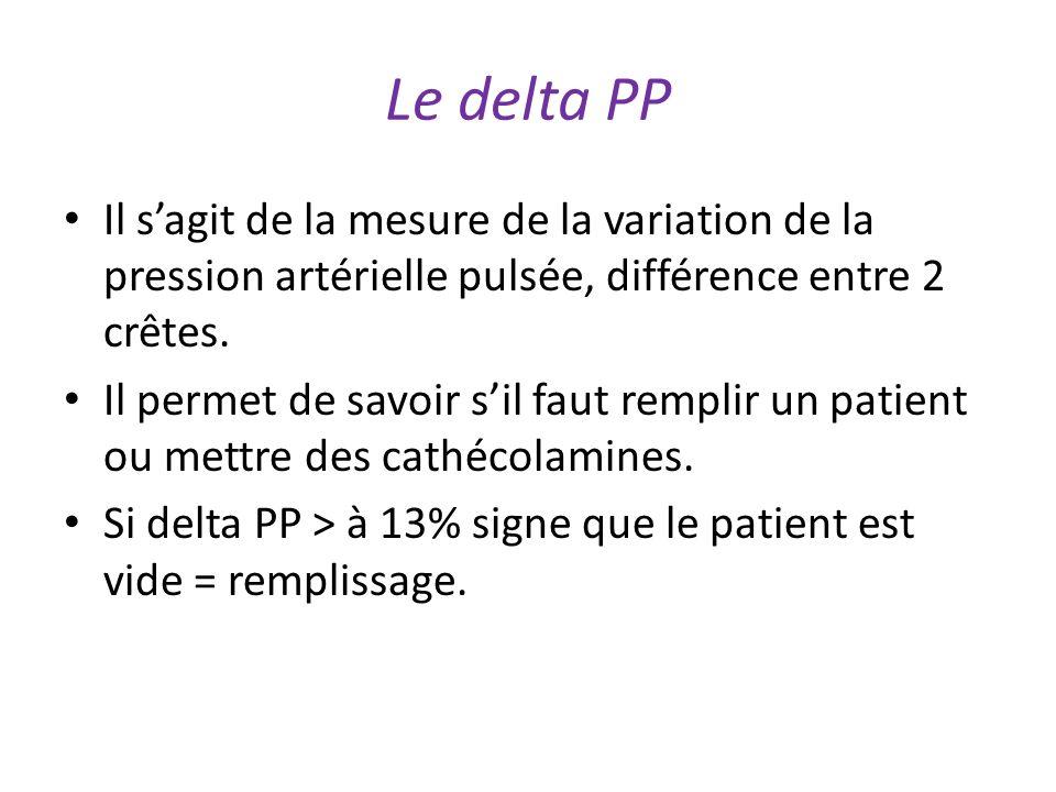 Le delta PP Il s'agit de la mesure de la variation de la pression artérielle pulsée, différence entre 2 crêtes.