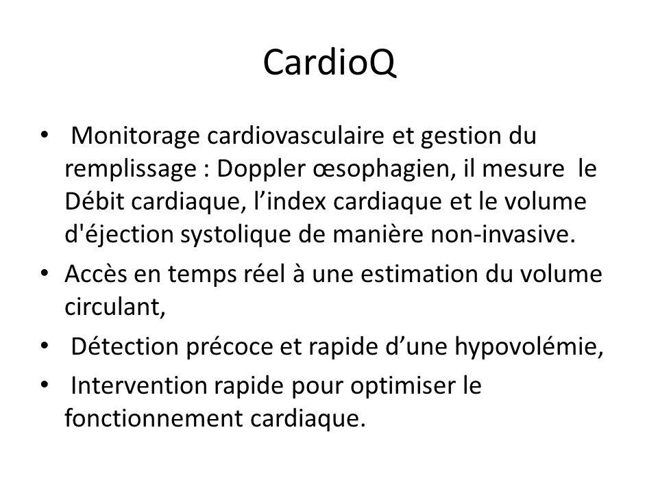 CardioQ