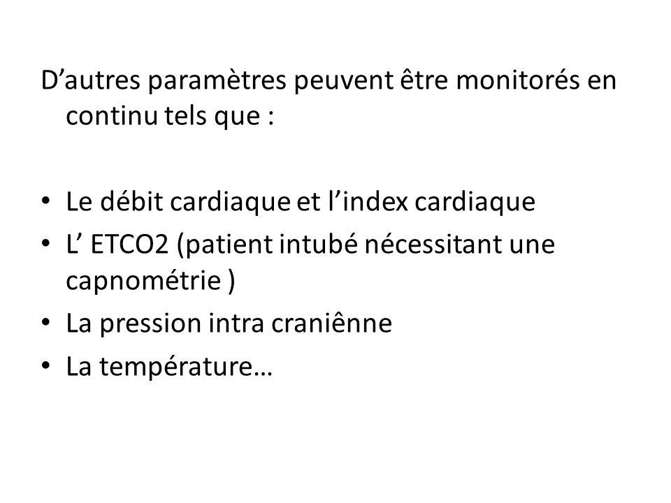 D'autres paramètres peuvent être monitorés en continu tels que :