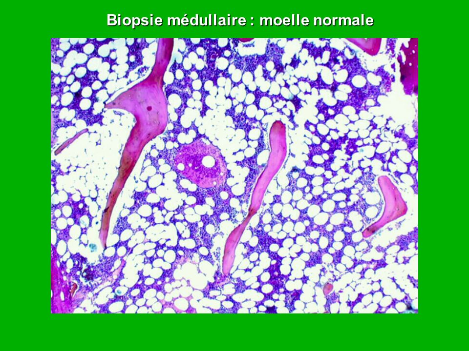 Biopsie médullaire : moelle normale