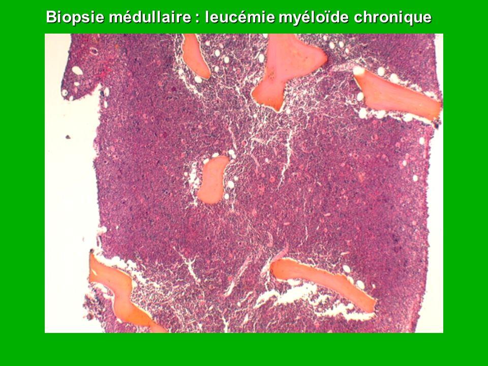 Biopsie médullaire : leucémie myéloïde chronique