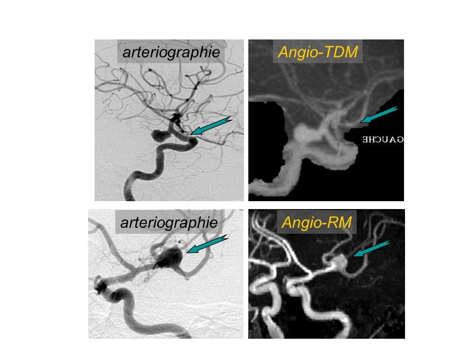 arteriographie Angio-TDM arteriographie Angio-RM