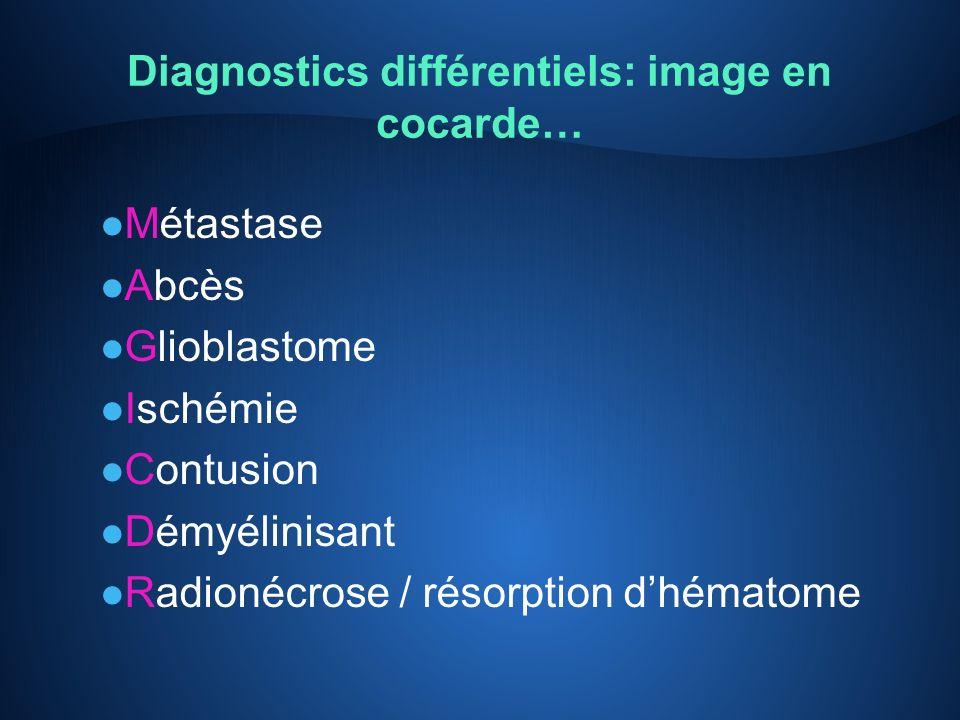 Diagnostics différentiels: image en cocarde…