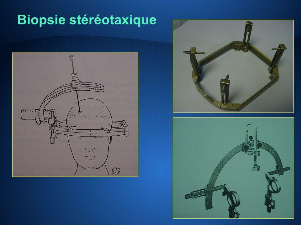Biopsie stéréotaxique
