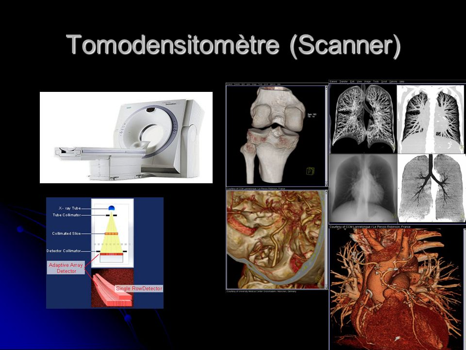 Tomodensitomètre (Scanner)