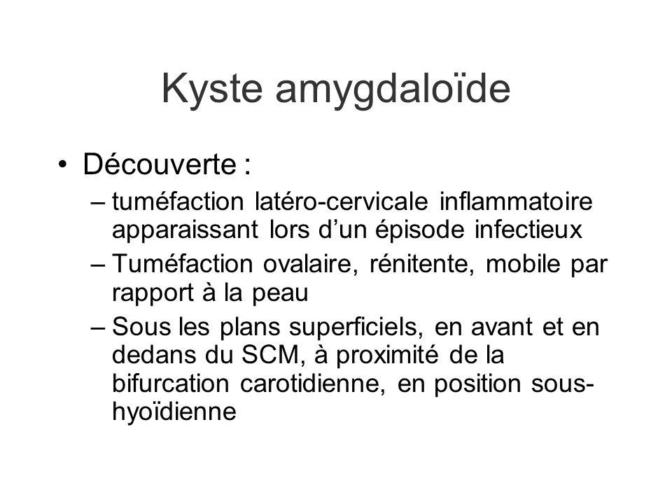 Kyste amygdaloïde Découverte :