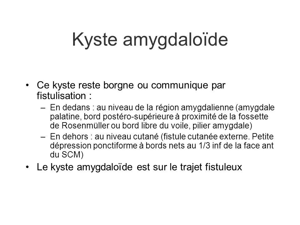 Kyste amygdaloïde Ce kyste reste borgne ou communique par fistulisation :