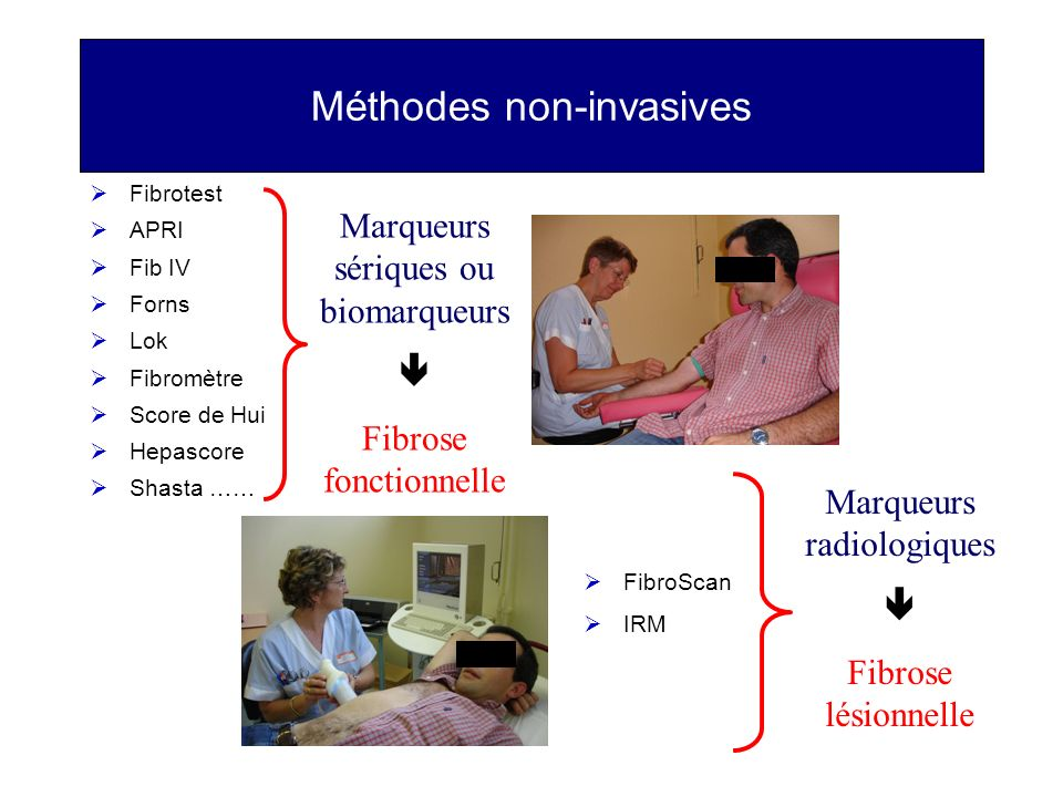 Méthodes non-invasives