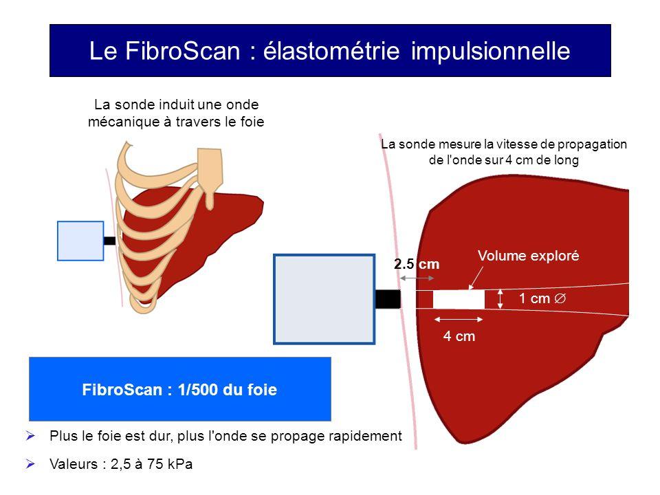 Le FibroScan : élastométrie impulsionnelle