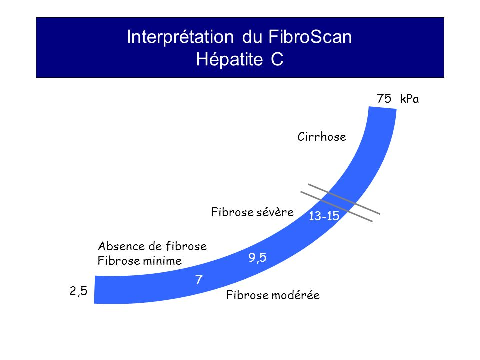 Interprétation du FibroScan Hépatite C