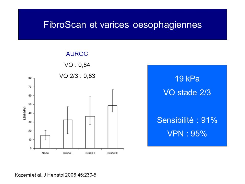 FibroScan et varices oesophagiennes