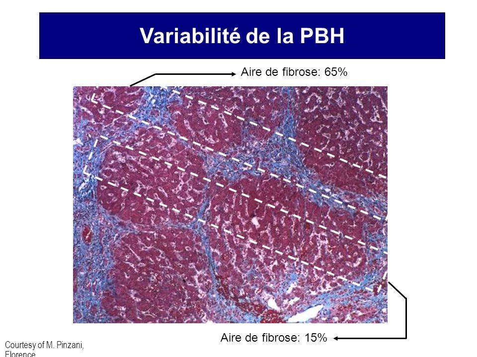 Variabilité de la PBH Aire de fibrose: 65% Aire de fibrose: 15%