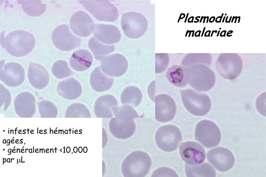 Plasmodium malariae CNRP infeste les hématies agées,