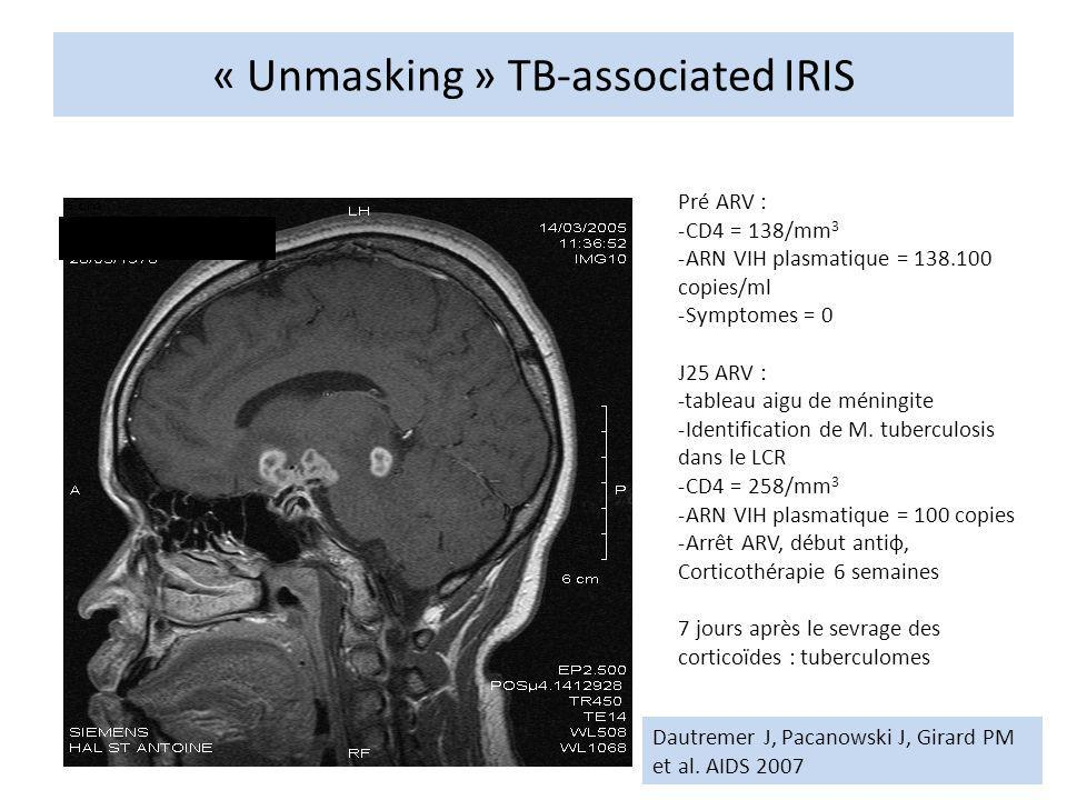 « Unmasking » TB-associated IRIS